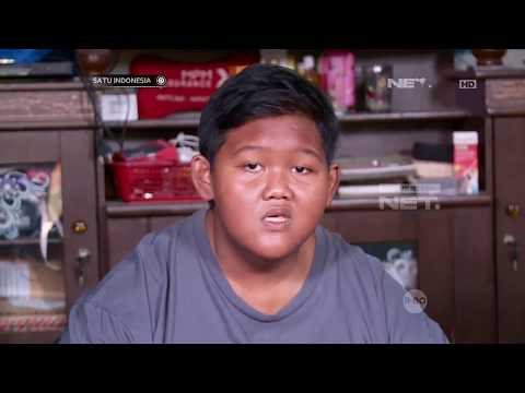 Satu Indonesia - Meningkatnya Angka Obesitas Indonesia Dari Tahun Ke Tahun