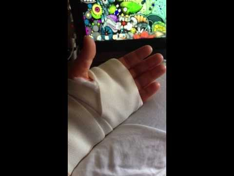 Day after Carpal Tunnel release surgery