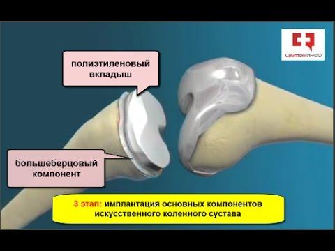 Операция на замену коленного сустава видео дискомфорт и гипертермия в коленном суставе