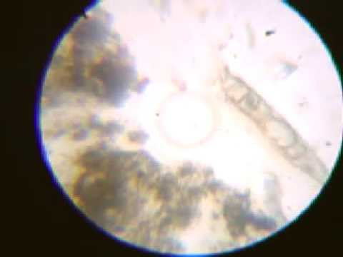 Trùng biến hình - kính hiển vi tự chế