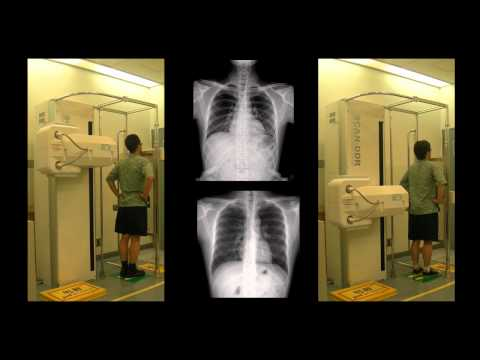 Scanning Digital X-ray System
