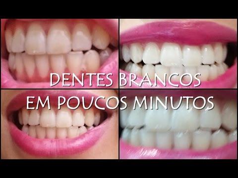 Como Clarear Os Dentes Em 2 Minutos Com Produtos Caseiros