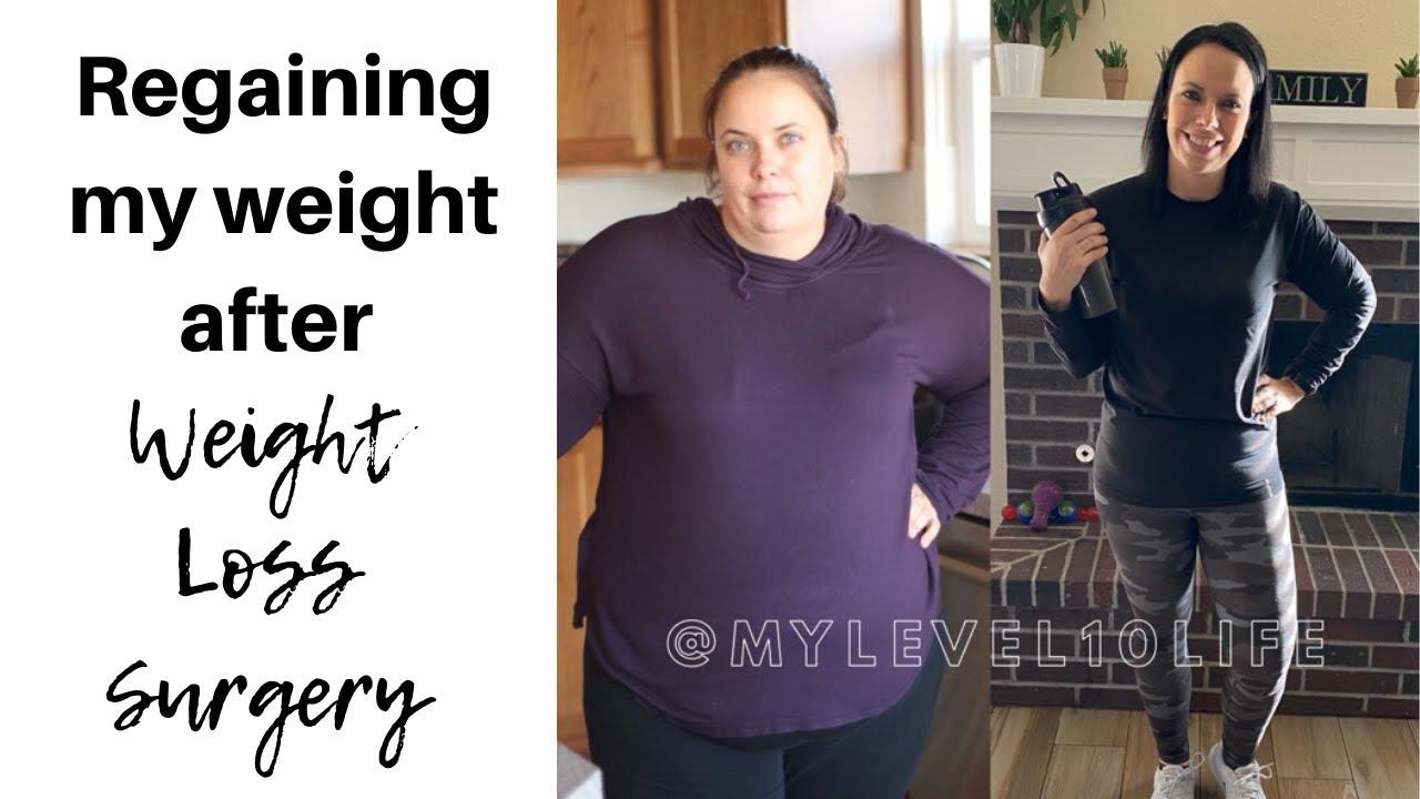 Scăderea în greutate după revizuirea bypassului gastric