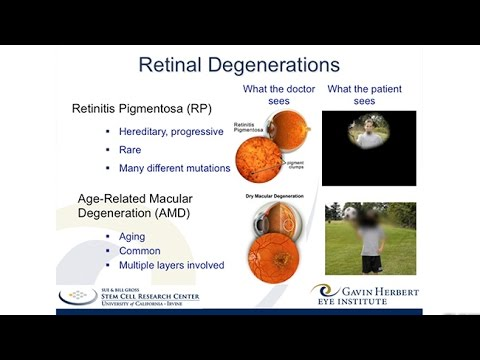 A Stem Cell Based Therapy For Retinitis Pigmentosa Youtube