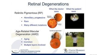 A Stem Cell-Based Therapy for Retinitis Pigmentosa