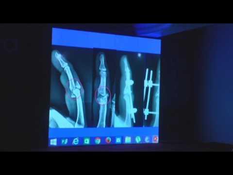 Management of Phalangeal Fractures, Dr. Shailesh Gupta