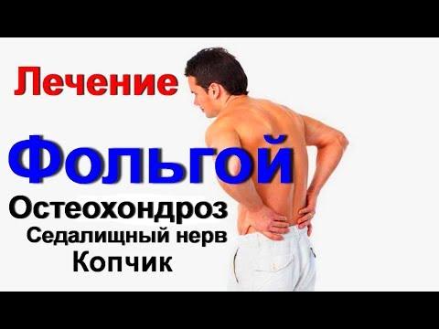 Фольга лечит невероятно. Боль в спине. Остеохондроз седалищный нерв, сколиоз, копчик.Лечение фольгой