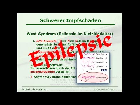 West-Syndrom / Frühkindliche Epilepsie