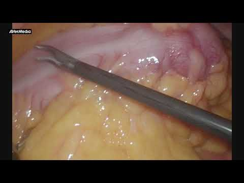 Lap Sigmoid Resection For Carcinoma. Рак сигмовидной кишки.