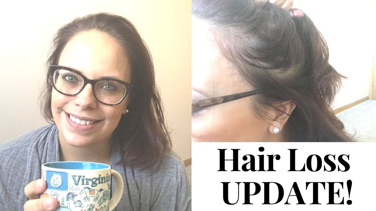 Hair Loss Update Hair Loss After Surgery Vsg Weightloss