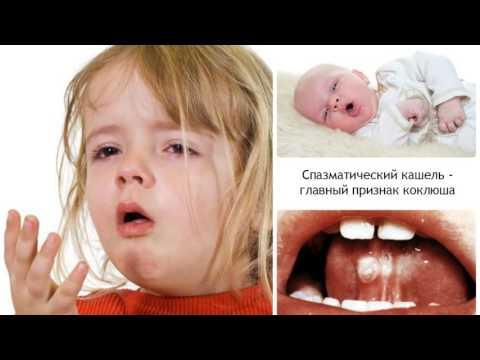 Коклюш у детей симптомы