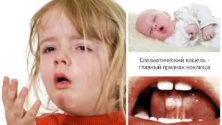 видео Пневмония симптомы без температуры: как своевременно распознать заболевание