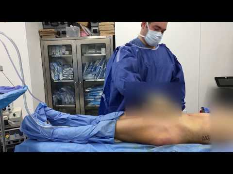 Liposuction of Abdomen, Sides, and Back with BBL
