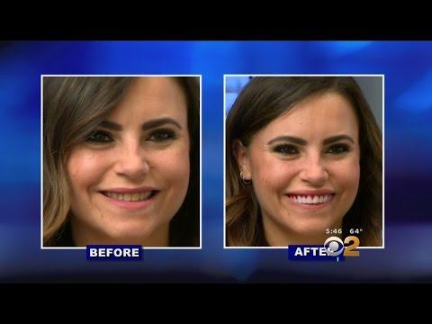 As Seen On TV: 'Perfect Smile Veneers' Not So Perfect