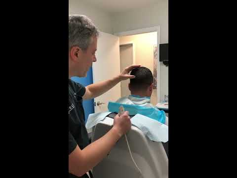 ARTAS iX Robotic FUE Procedure with Dr. Wolfeld Part 2