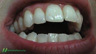 Testování účinnost metody ,oil pulling' na bělení zubů a špatný dech