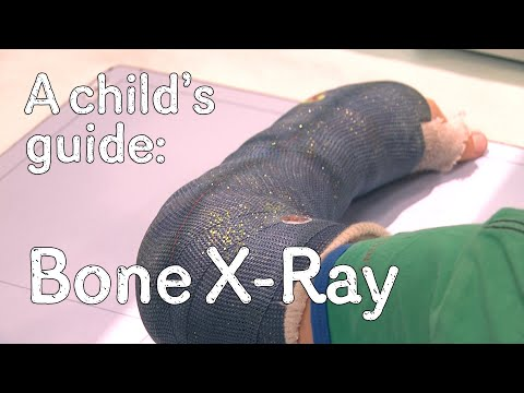 A child's guide to hospital: X-Ray - Broken Bone