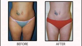 Liposuction - Cleveland Cosmetic Surgery Thumbnail