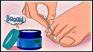 Грибок ногтей. Лечение КРЕМОМ Ногтимицин. Есть ли ЭФФЕКТ???