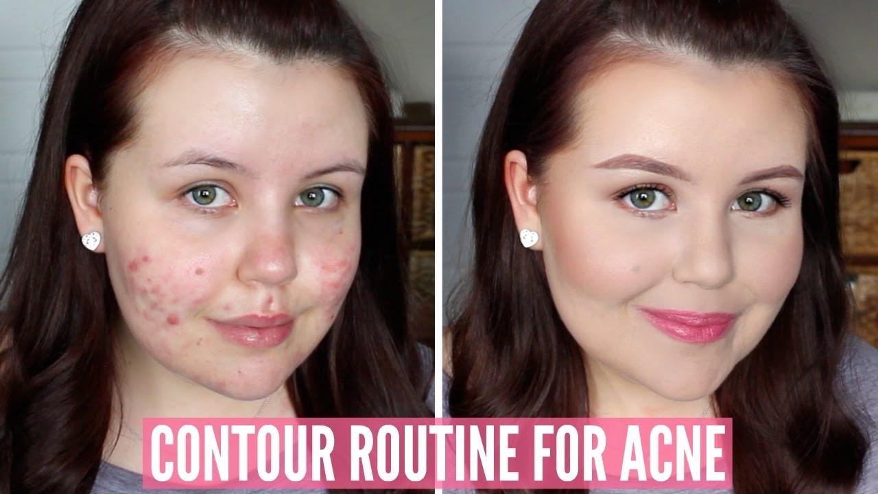 how to highlight contour textured skin acne scarring pores etc