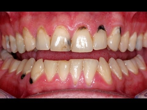 Tooth Decay on Fruitarian diet