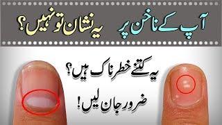 Nails Par Sufaid Nishan Ka Matlab || What Causes White Marks On Nails || In Urdu