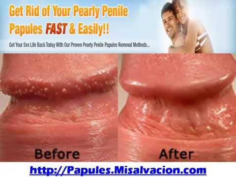 Natural Home Remedies For Penile Enlargement