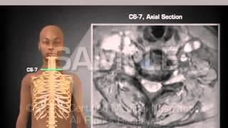 видео Что показывает МРТ шеи? МРТ лимфоузлов, сосудов и мягких тканей шеи