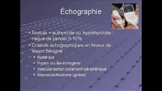 Echographie de la thyroïde : critères malins et bénins - Docteur Dana Hartl