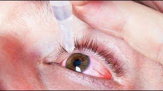 Csepp a látás fenntartása érdekében
