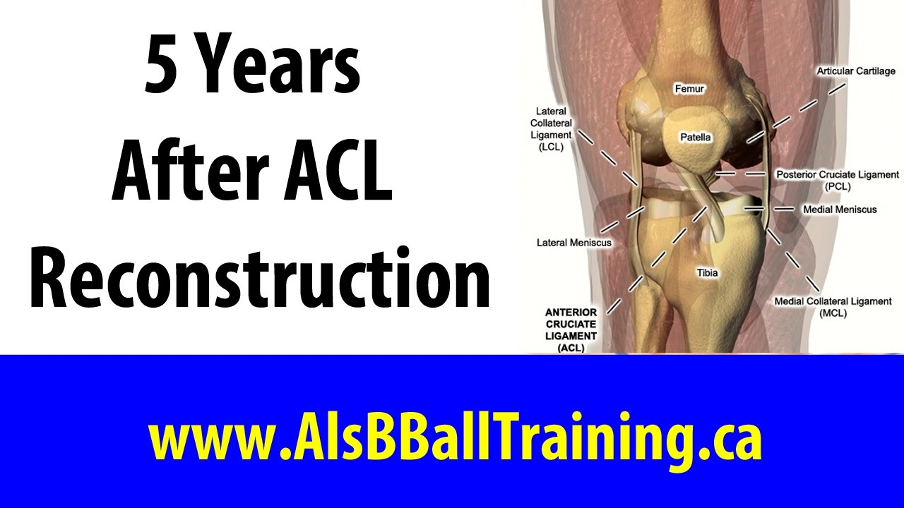 5 Years After ACL Reconstruction