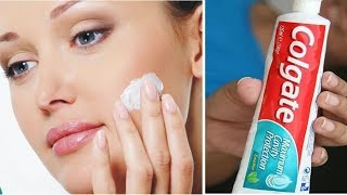 Top 6 Amazing Toothpaste Beauty Hacks | Amazing Toothpaste Beauty Benefits
