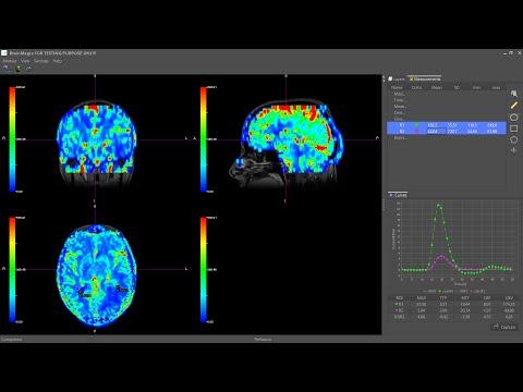 BrainMagix 2.0: DSC Perfusion MRI in a Brain Tumor