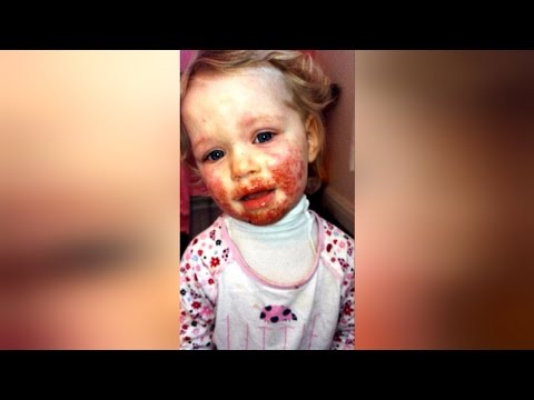 Baby Had Blood Sores on Face for 8 Months, Doctors Unsure Until Mom Recalled Something