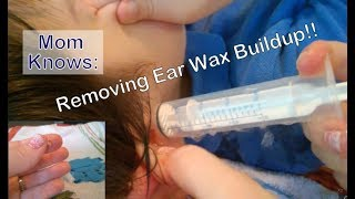 Removing Ear Wax Buildup!! Flushing Out Ear Wax With Hydrogen Peroxide Tutorial & Review