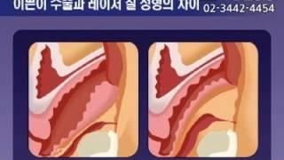 일반이쁜이 수술&레이저질성형수술의 차이는-.리벨…