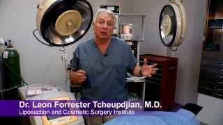Liposuction: Importance of an Experienced, Artistic Surgeon Thumbnail