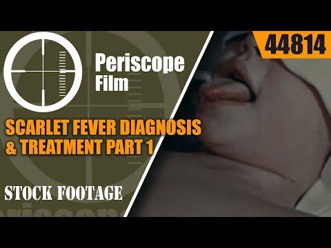 SCARLET FEVER DIAGNOSIS & TREATMENT PART 1 HISTORIC FILM 44814