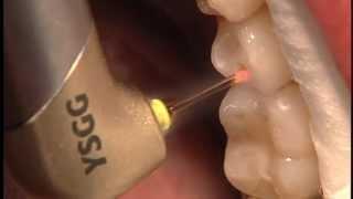 Cosmetic Dental Laser eliminación de caries C II SIN DOLOR ni TALADRO. Thumbnail
