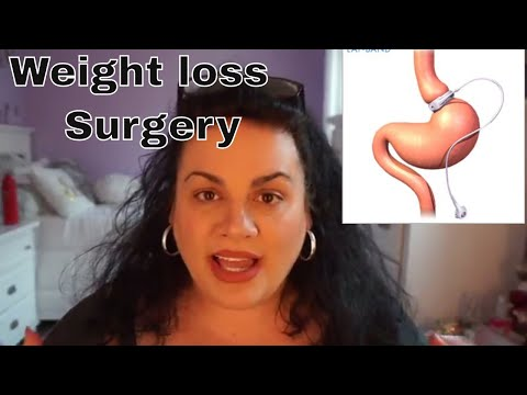 I got Weight Loss Surgery 😱