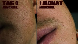 Beard Transformation nach 1 Monat | Minoxidil | 4K