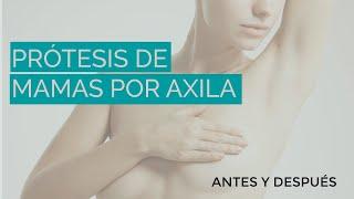 Prótesis de mamas, por la axila, Dr. Torres Fortich, Cirugía Estética, Santiago, España