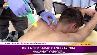 Dr. Ender Saraç canlı yayında hacamat yaptı