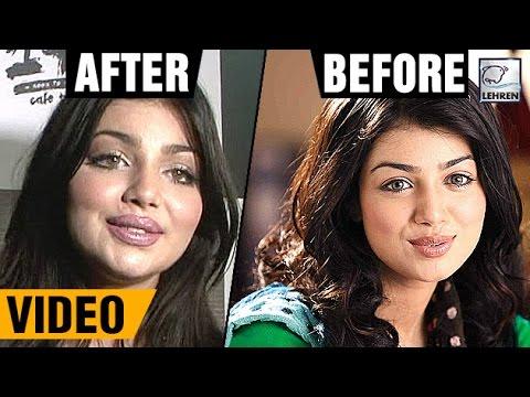 Ayesha Takia's 1st Appearance Post Plastic Surgery | LehrenTV thumbnail