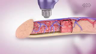 BTL 6000 SWT urology visualization penis EN100