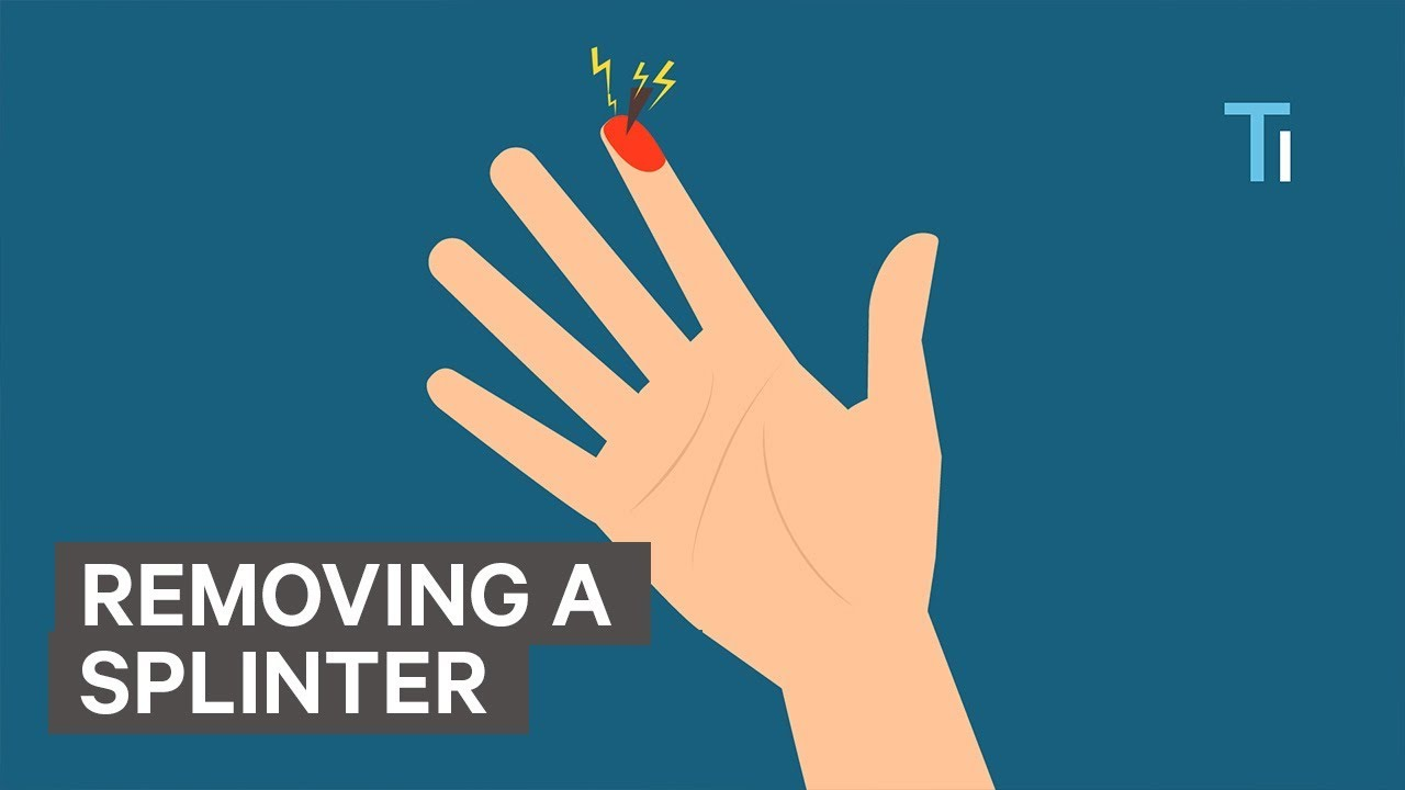 How To Remove A Splinter In 11 Natural And Painless Ways
