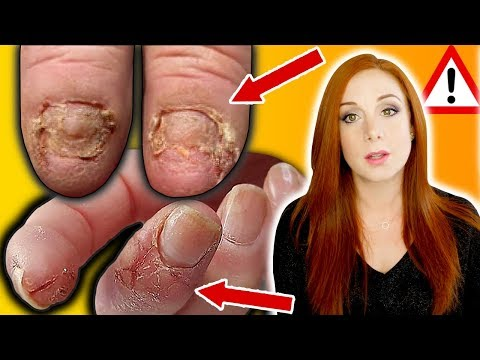 BREAKING NEWS – NAIL ALLERGIES, YOUR SERIOUS RISKS & HOW TO STOP THEM