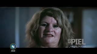 #EnlaPiel de Norma, empleada de un albergue transitorio