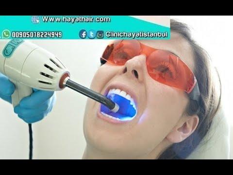 تبييض الاسنان في تركيا |تبييض بالليزر في اسطنبول |مركز الحياة للاتصال 00905551089000