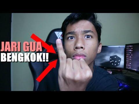 JARI GUE BENGKOK DAN TANGAN PERNAH PATAH ? - 5 Facts About Me